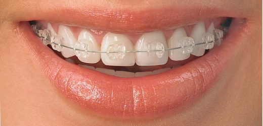 Costul unei lucrări dentare la clinica stomatologică DentoCare